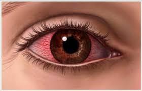 Atender nuestros ojos es de vital importancia